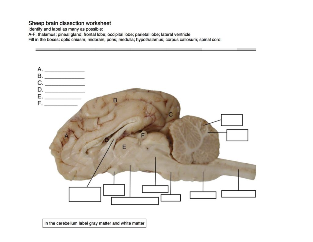 Sheep Brain Dissection Fort Vancouver Nw Noggin