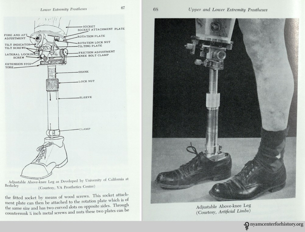 medium resolution of adjustable above knee leg in william a tosberg upper and lower limb