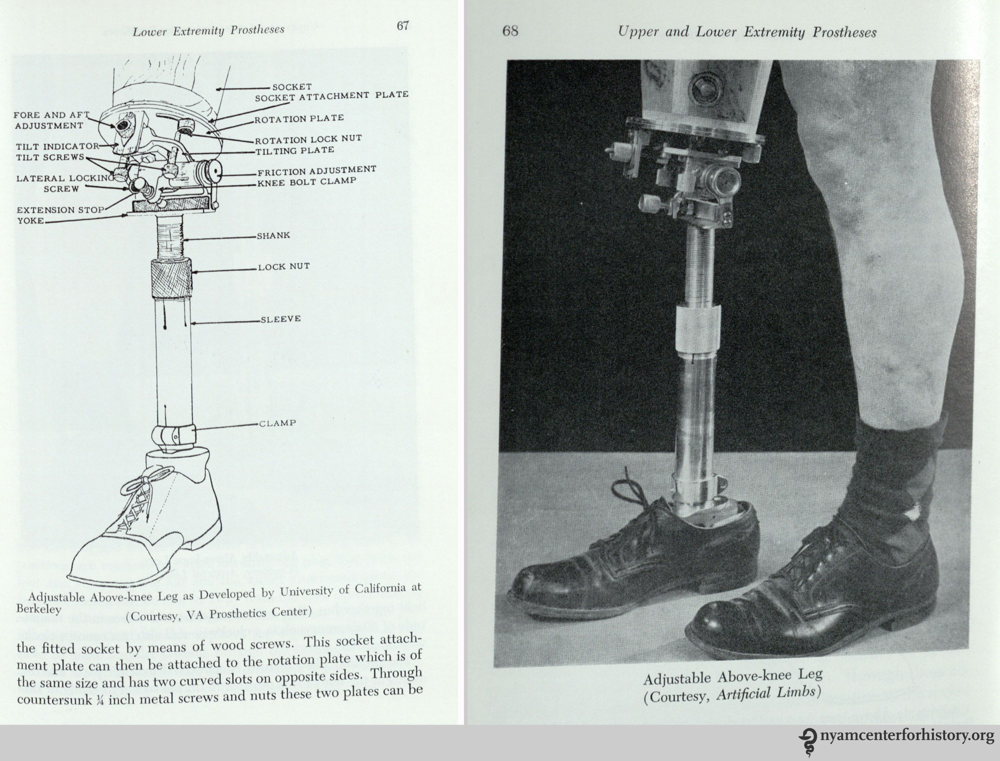 hight resolution of adjustable above knee leg in william a tosberg upper and lower limb