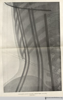 Plate I: Life-size X-ray of a straight-line corset (rear view). In O'Followell, Le Corset, vol. 2, 1908.