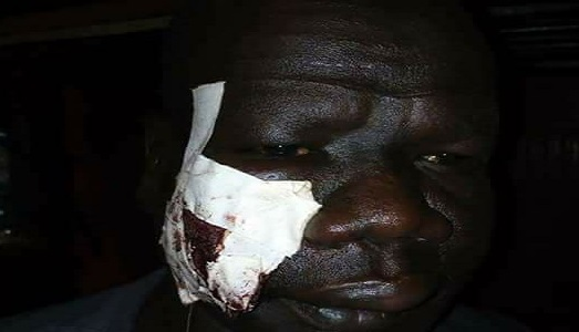 Captain Simon Guor Gatwech who has been beaten (Courtesy photo)