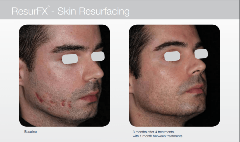 Before and After M2 ResurFX Skin Resurfacing
