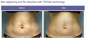 Before and After RF Skin Tightening