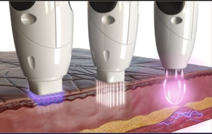 rf-microneedling-technology