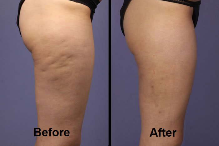 Cellulite reduction with RF NYC