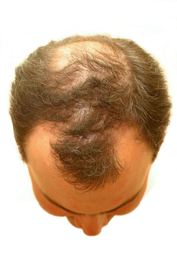 Glossary - NY Hair Loss
