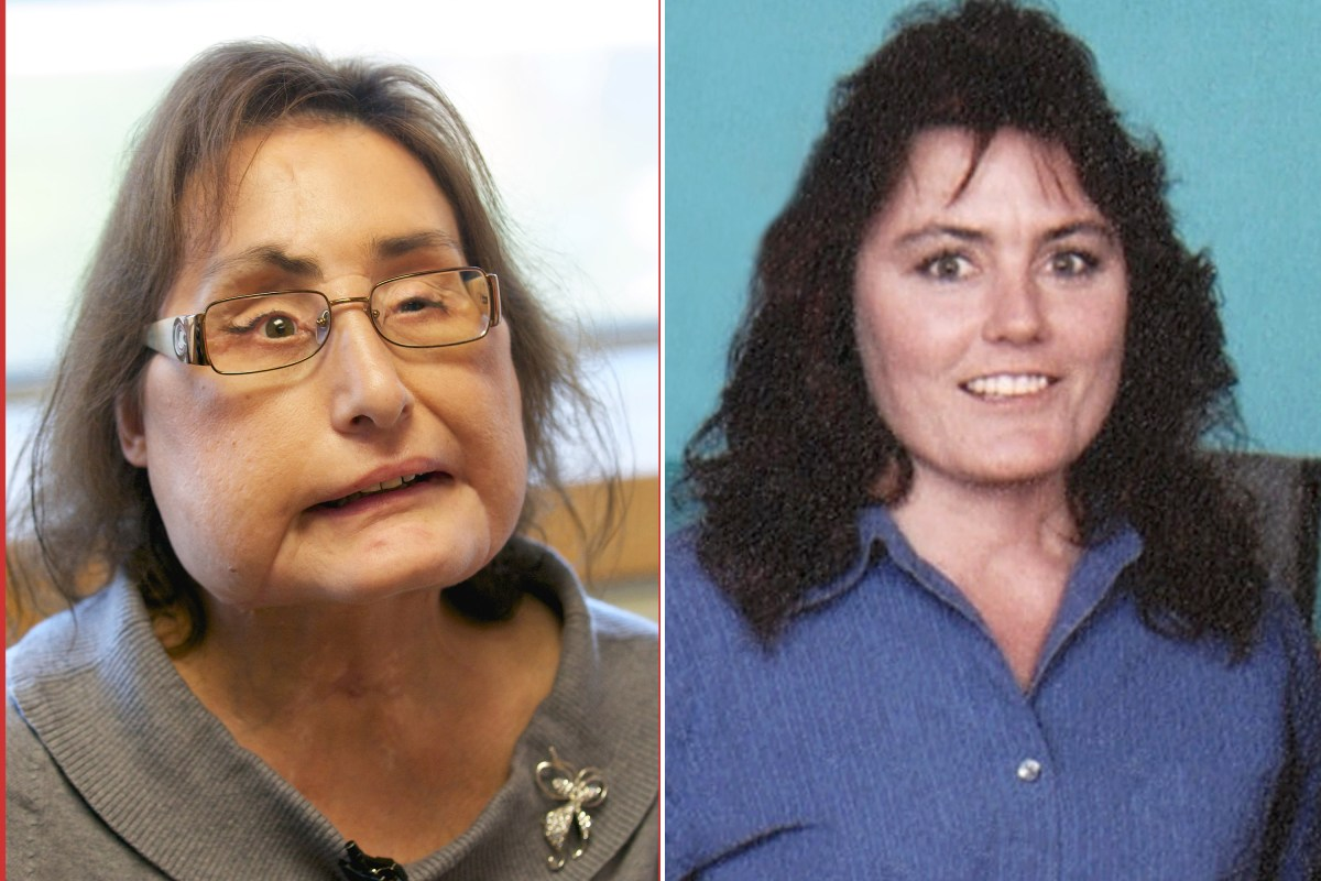 Connie Culp Who Got First Us Face Transplant Dead At 57