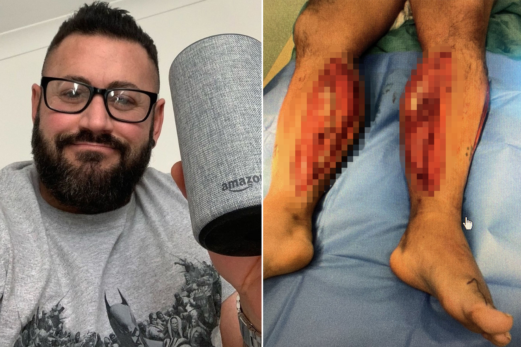 UK bodybuilder says Alexa saved his life after tumble down stairs