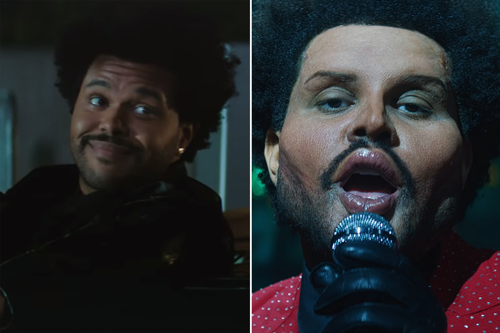 The Weeknd shows real face after 'plastic surgery' shocked