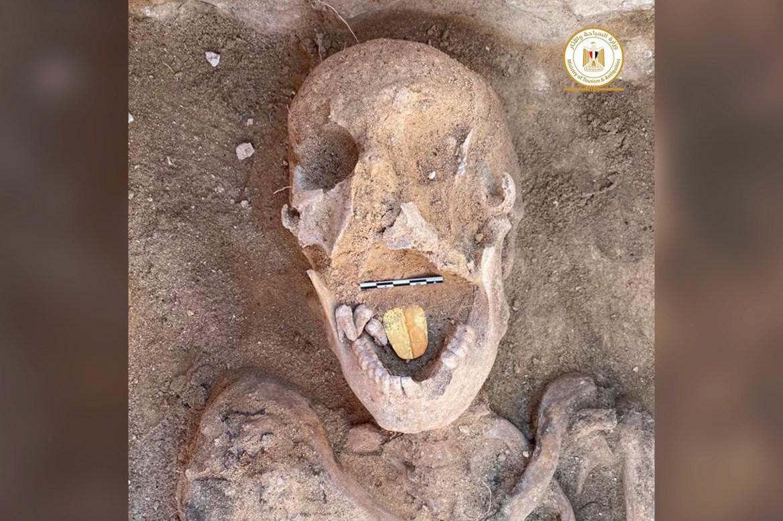 gold tongue mummy