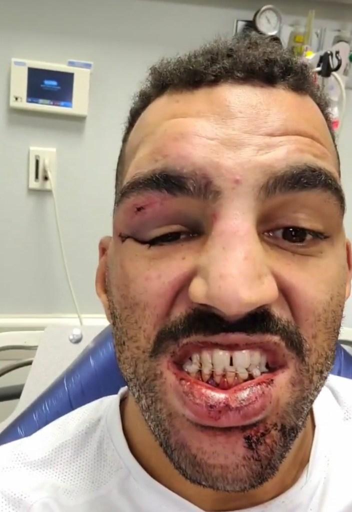 UFC Devin Clark teeth