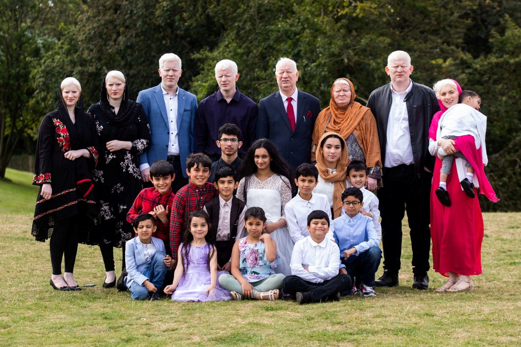 The Guinness World Records have yet to confirm, but this British clan is fairly certain they have more albino members than any other living family.