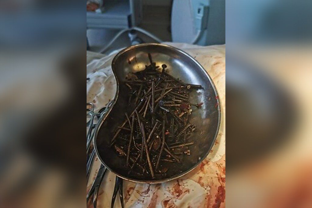 The surgery lasted for three hours during which doctors removed nails, screws, nuts and knives from the man's stomach. He is now in stable condition.