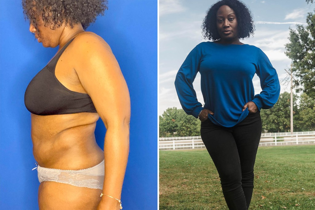 Rae-Shan Barclift shows the effects she claims CoolSculpting had on her body (left) and how she looks today after corrective liposuction.