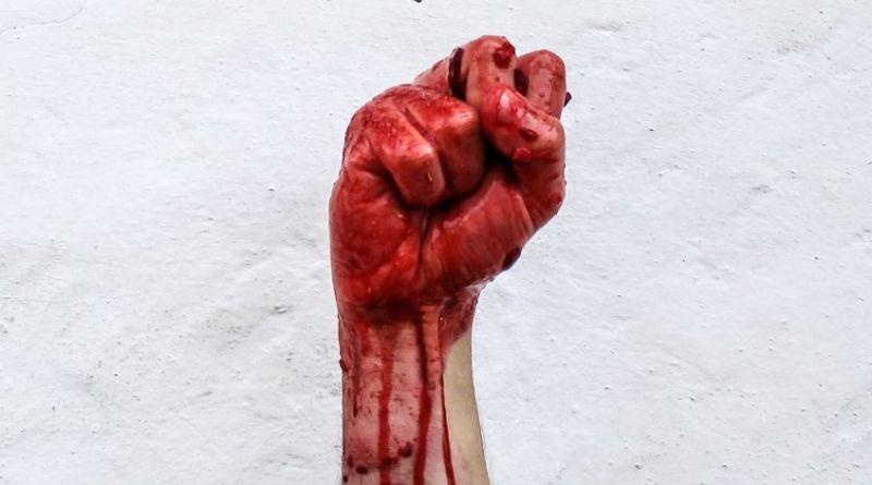 Gæsterblogger Iza om sex og menstruation: Jeg skammede mig vildt over blodbadet