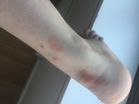 Bed bug bite marks on Kayla Bullwinkel's foot and ankle.
