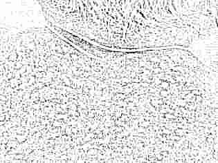 rasurile cutanate în varicoză