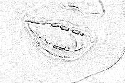 Следует ли лечить молочные зубы? Нужно ли лечить молочные зубы у детей: рекомендации стоматологов