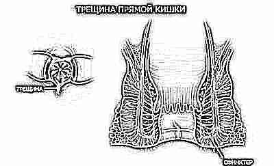 μαυρολεσβιακό όργιο