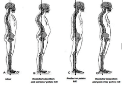 [Fall 2013 Block III] Lower Crossed Syndrome Flashcards