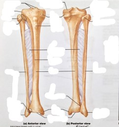 terms in this set 10 lateral tibial condyle  [ 814 x 1024 Pixel ]