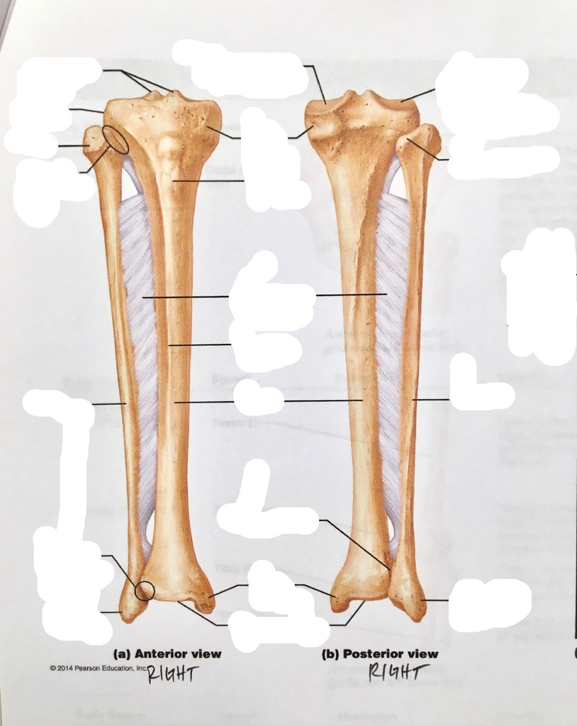 medium resolution of terms in this set 10 lateral tibial condyle