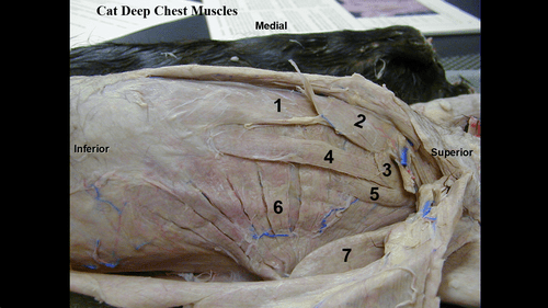 Decorticate Posturing Brain Blood Supply To The And Cranial Nerves Flashcards