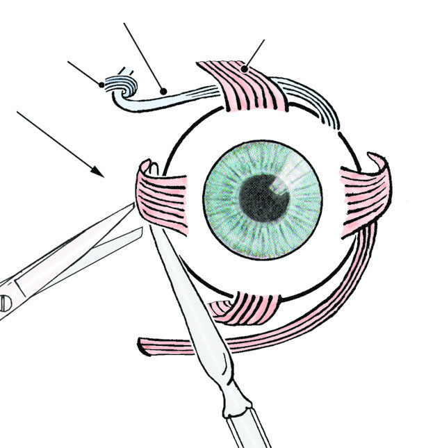 diagram of the left eye systems engineering v muscles dissector quizlet location