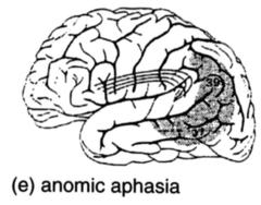 Aphasia Brains Flashcards