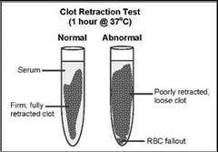 Clot Retraction