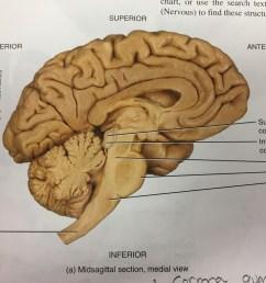 brain stem diagram [ 1024 x 768 Pixel ]