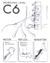 Clinical Considerations: Cervical Spine (w/ general spine
