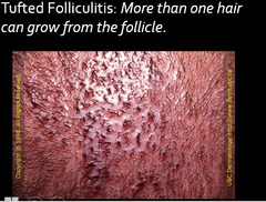 sebaceous gland and hair follicles flashcards quizlet