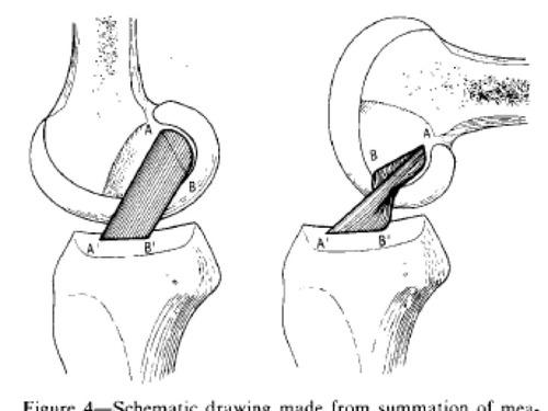 Diagnosis Of Meniscal Tear
