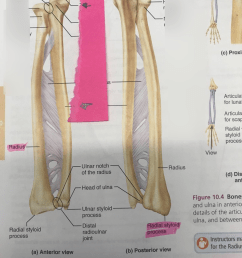 radius and ulna [ 768 x 1024 Pixel ]