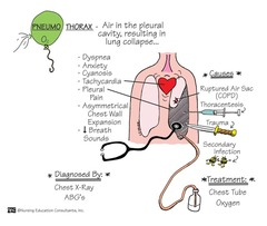 Respiratory Disorders Flashcards | Quizlet