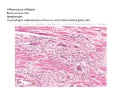Cardiopathologies / Heart Disease flashcards   Quizlet