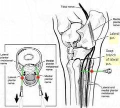 Nerve Block: Auriculopalpebral Nerve Block Horse