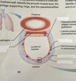 tissue of trachea diagram quizlet [ 1024 x 891 Pixel ]