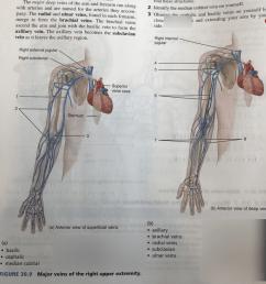 bent arm diagram [ 768 x 1024 Pixel ]