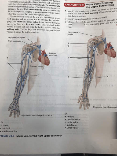 small resolution of bent arm diagram