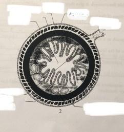 ileum diagram labeled [ 1024 x 776 Pixel ]