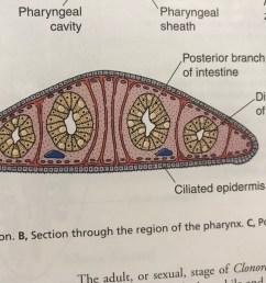 diagram of diverticulum [ 1024 x 768 Pixel ]