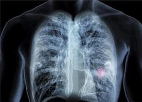 Lung Cancer, LPC, Colon Cancer