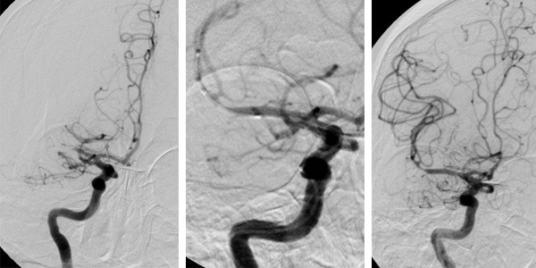 Enterprise stent was found to be a safe and effective