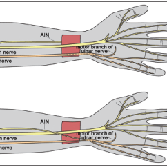 Ulnar Nerve Diagram Emerson Digital Thermostat Wiring Transfers Of The Forearm And Hand A Review Current Indications Deficit Transfer Terminal Branch Anterior Interosseous To Motor