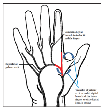 Options for thumb revascularization: our experience and