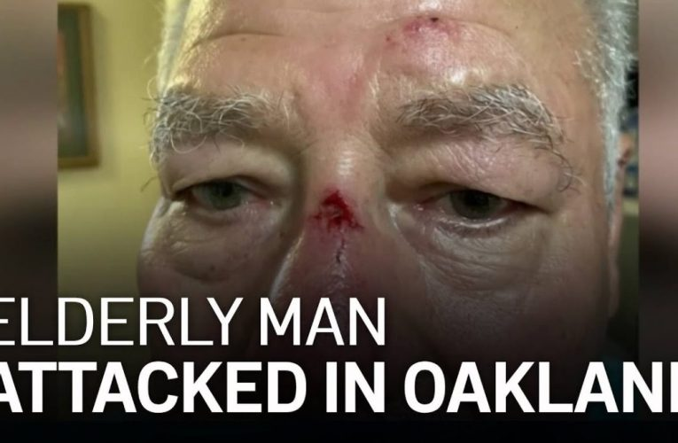 Oakland Police Investigate After Elderly Man Attacked