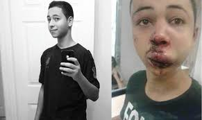 Tariq Khdeir before and after having been beaten by Israeli police