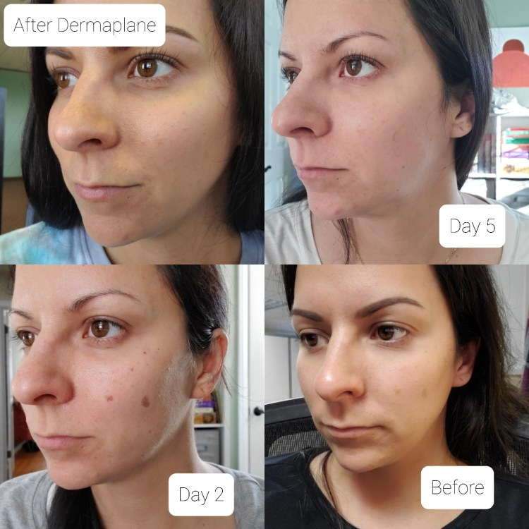 A picture of before and after from a broadband laser treatment